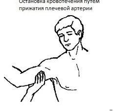 плечевая артерия