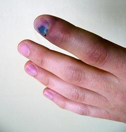 прищемил палец - первая помощь